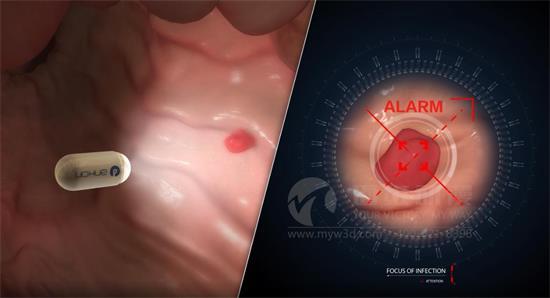 可以模拟真实操作的手术3d动画